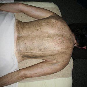 Thalassotherapy-back